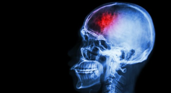 stock-photo--stroke-cerebrovascular-accident-film-x-ray-skull-lateral-with-stroke-and-blank-area-at-left-195100124