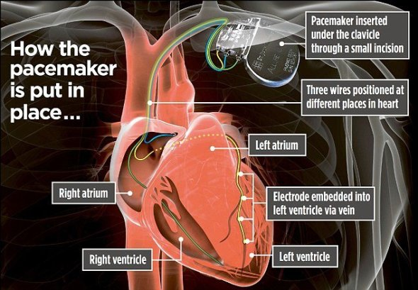 Pacemaker Is Put Into Place